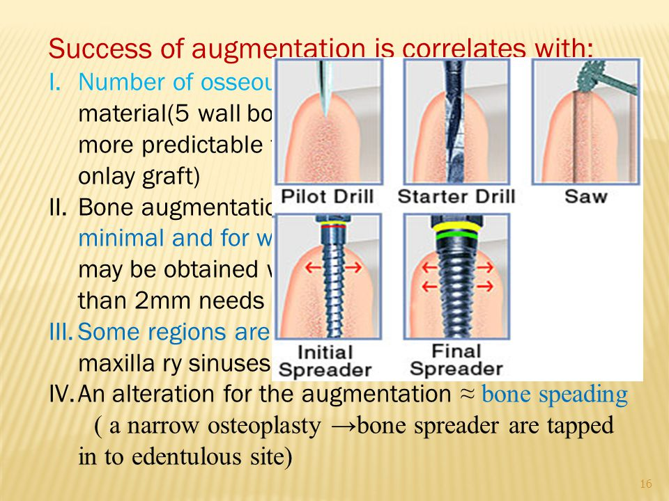16 Success of augmentation is correlates with: I.Number of osseous wall in contact with the graft material(5 wall bony defect as a tooth socket is more predictable than one- wall defects as an onlay graft) II.Bone augmentation is more predictable when is minimal and for width( 1 to 2mm increase in width may be obtained with an alloplast and GBR, more than 2mm needs autologous block graft) III.Some regions are better suited(e.g floor of the maxilla ry sinuses) IV.An alteration for the augmentation ≈ bone speading ( a narrow osteoplasty →bone spreader are tapped in to edentulous site)