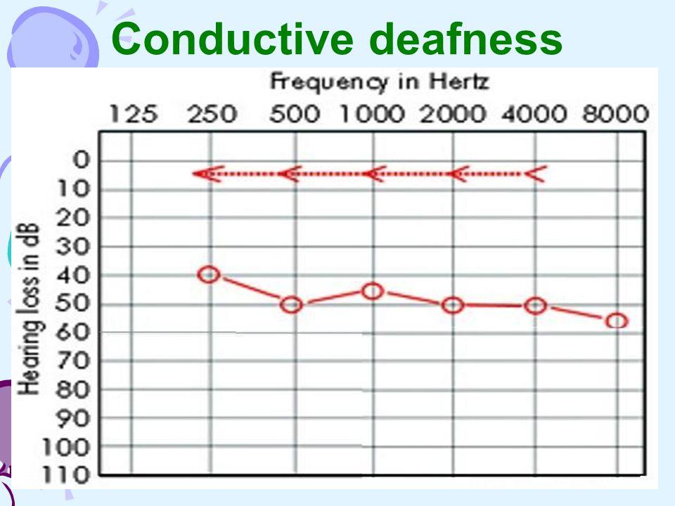 Conductive deafness