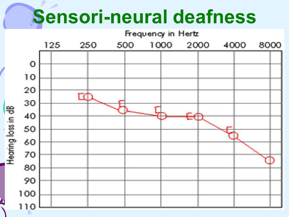 Sensori-neural deafness