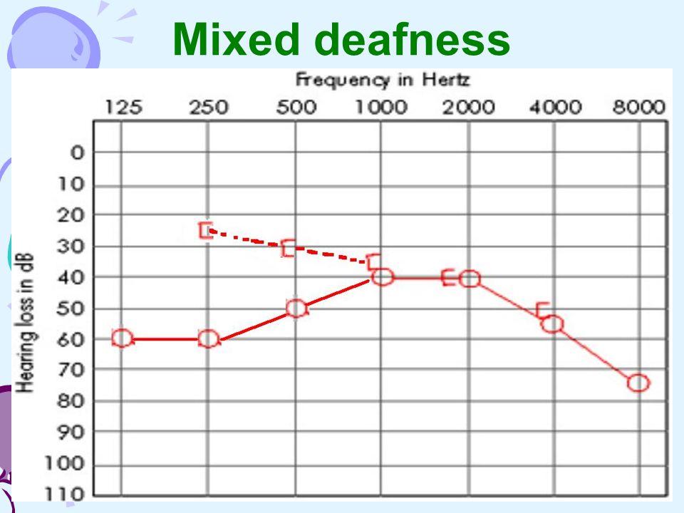 Mixed deafness