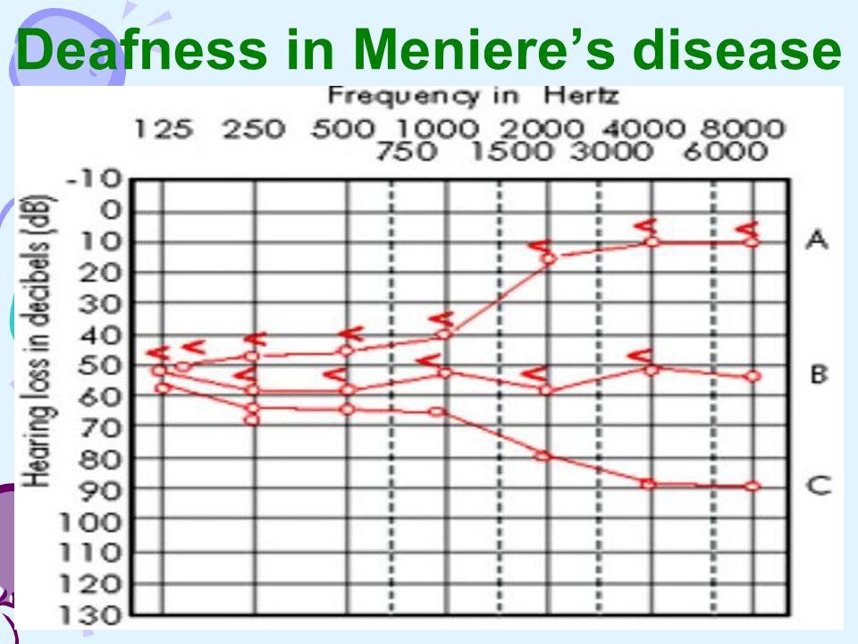 Deafness in Meniere's disease