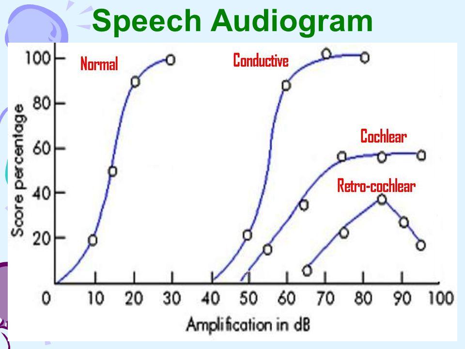 Speech Audiogram