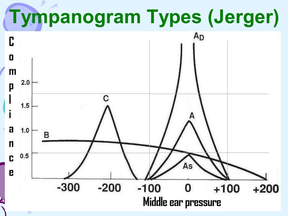 Tympanogram Types (Jerger)