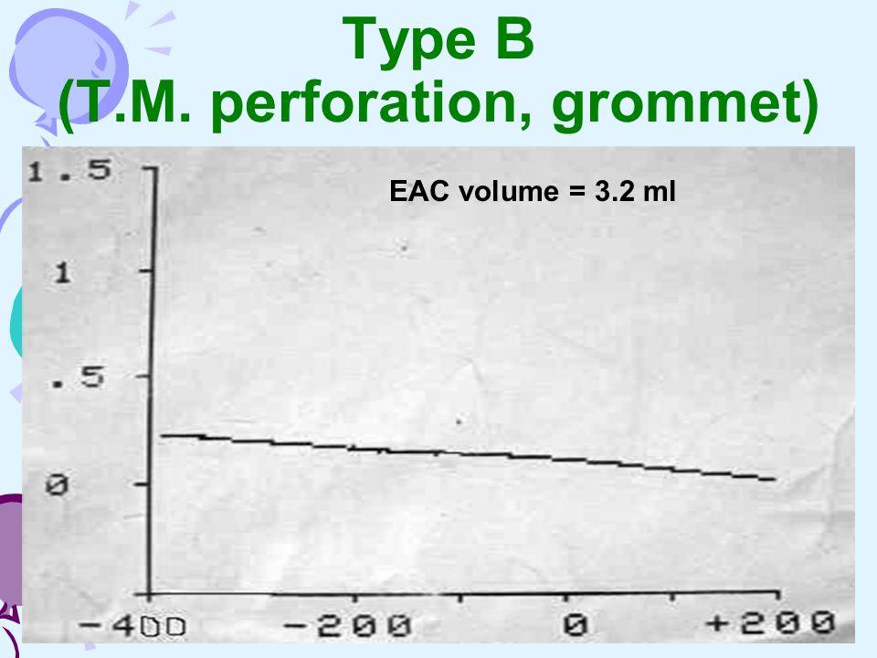 Type B (T.M. perforation, grommet) EAC volume = 3.2 ml