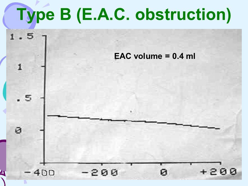 Type B (E.A.C. obstruction) EAC volume = 0.4 ml