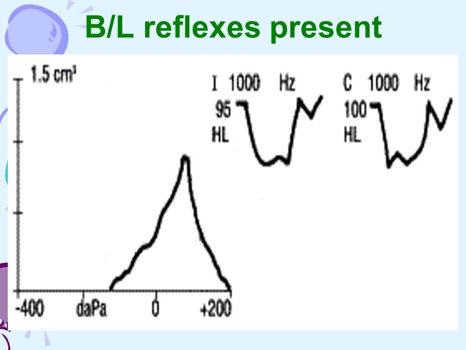 B/L reflexes present
