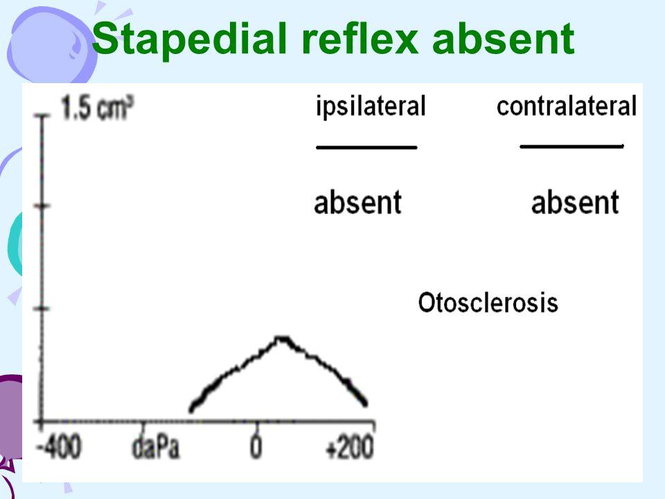 Stapedial reflex absent