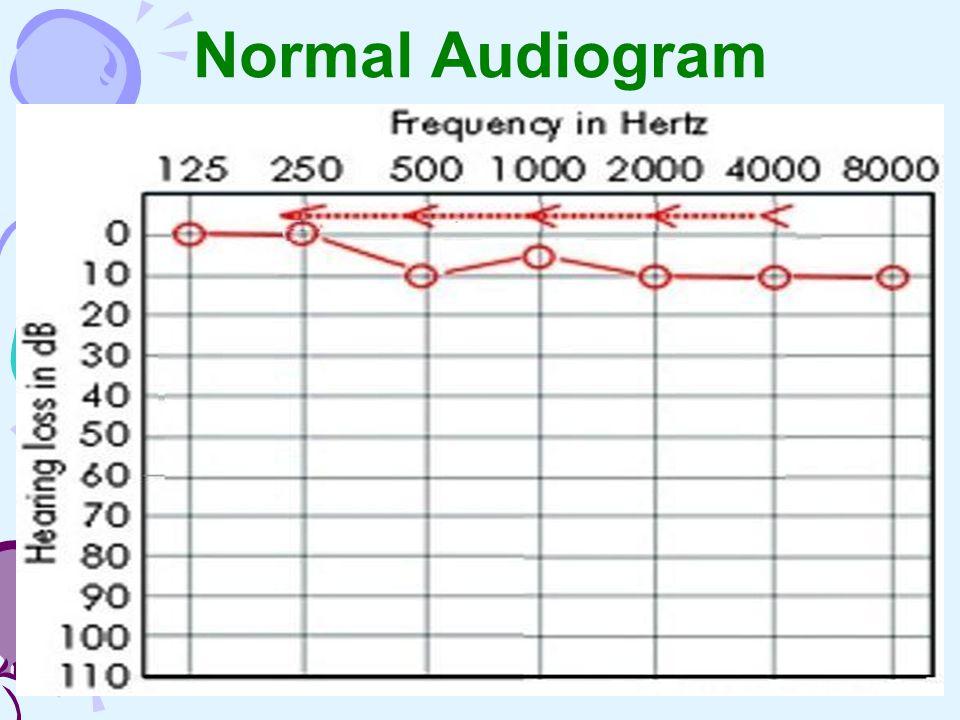 Normal Audiogram