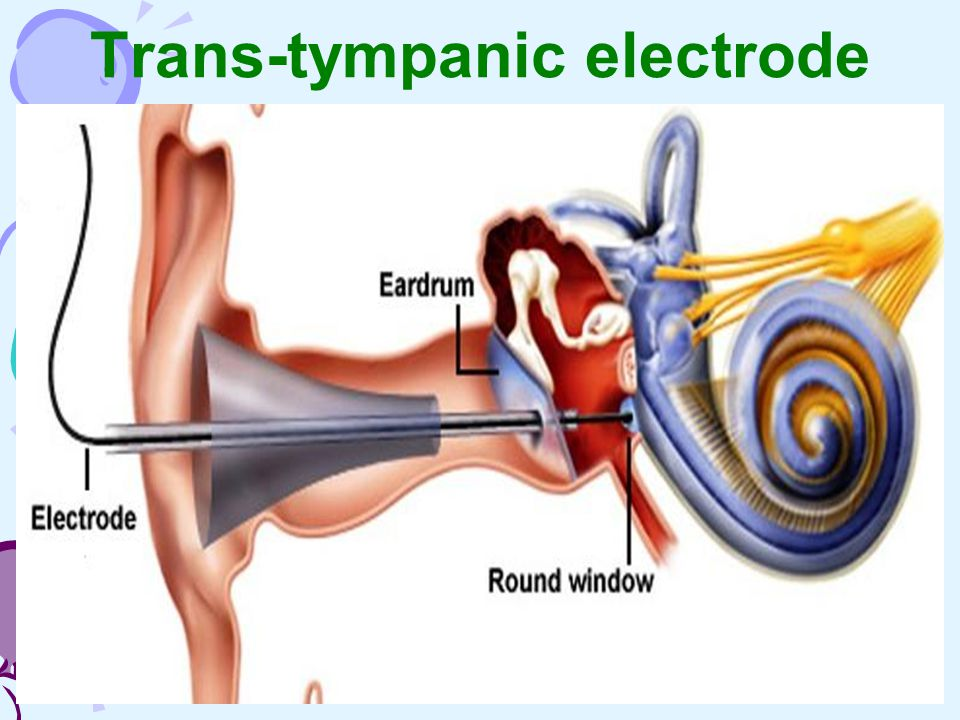 Trans-tympanic electrode
