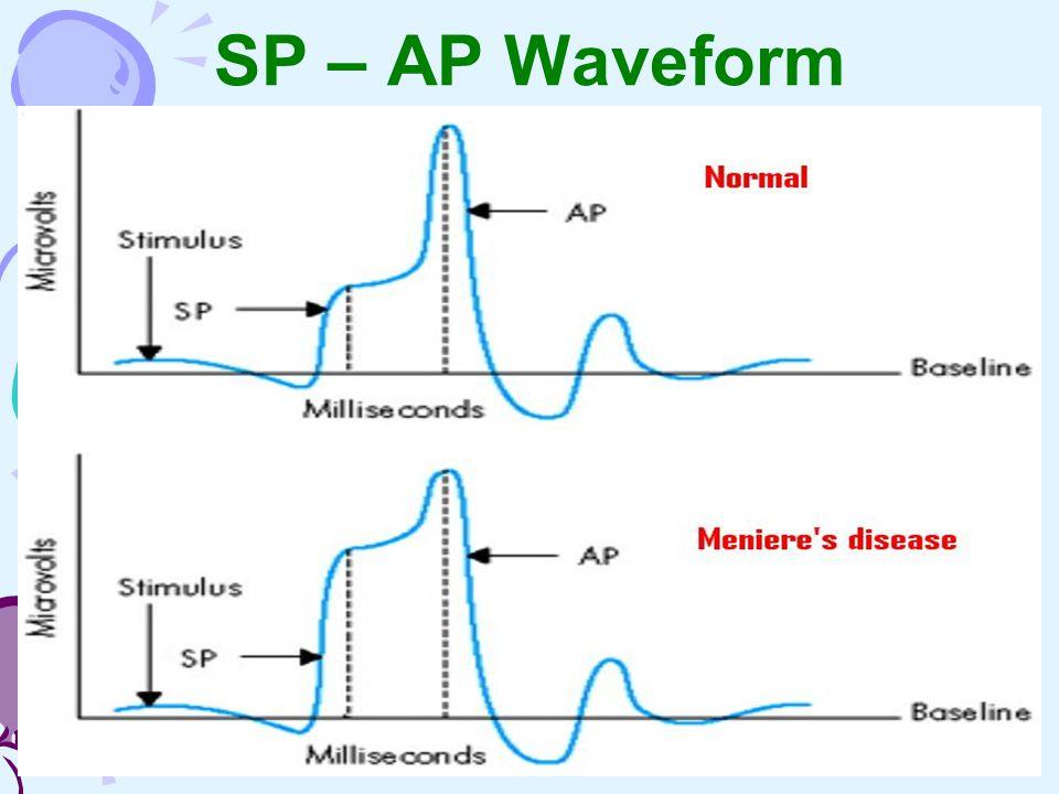 SP – AP Waveform
