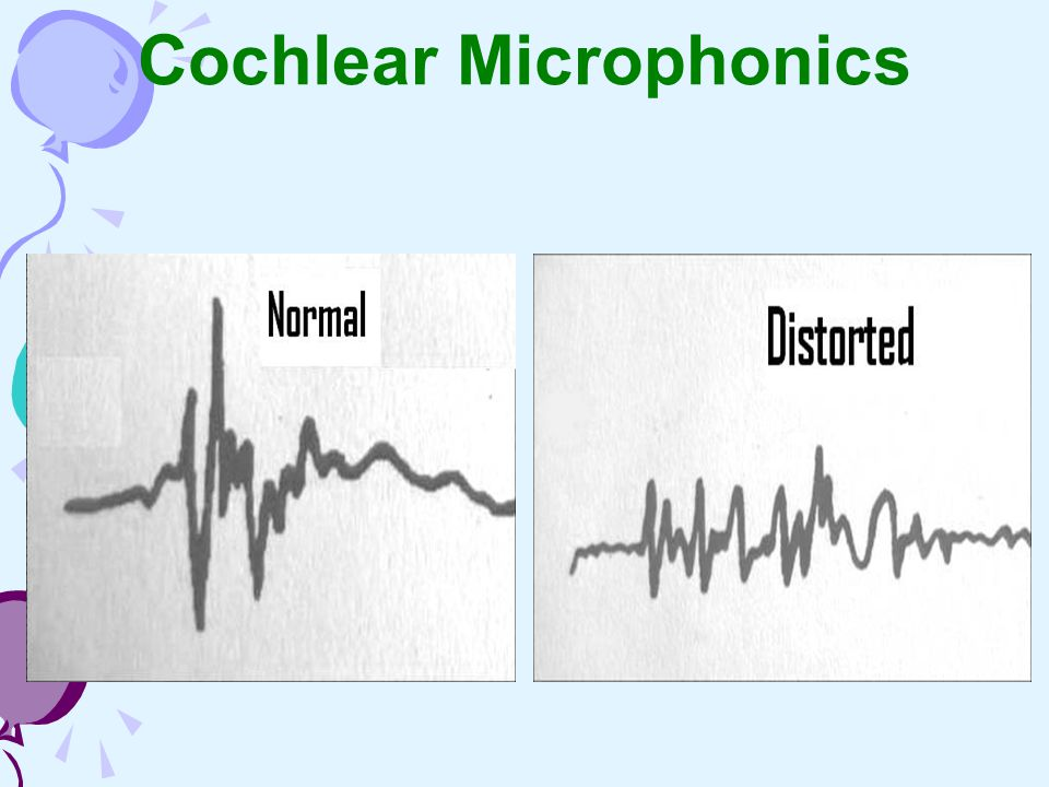 Cochlear Microphonics Normal SP/AP > 30 % Distorted CM