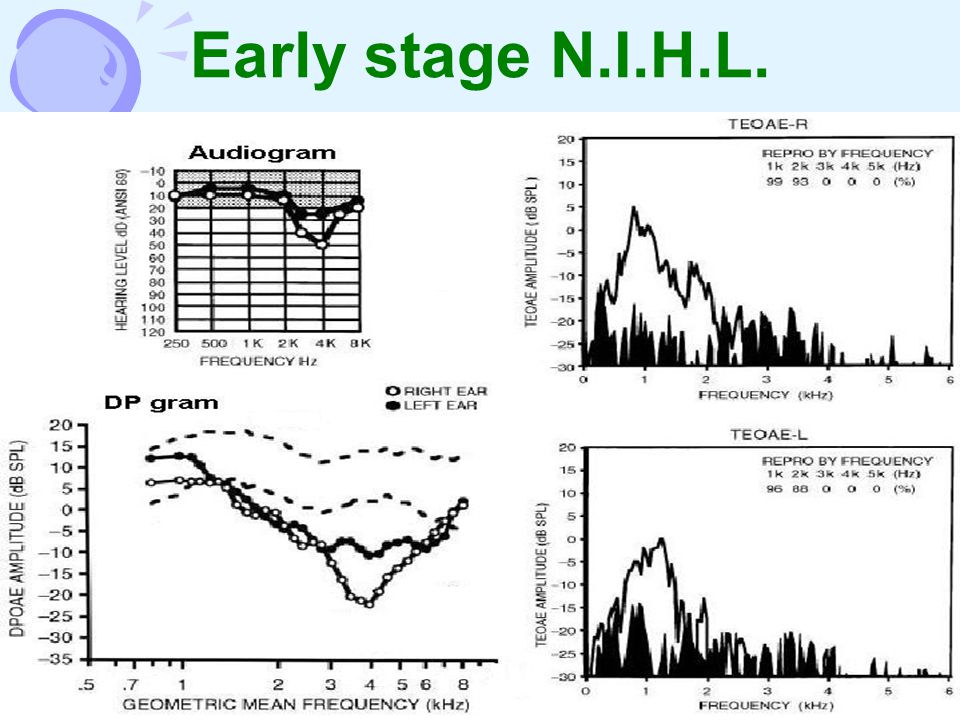 Early stage N.I.H.L.