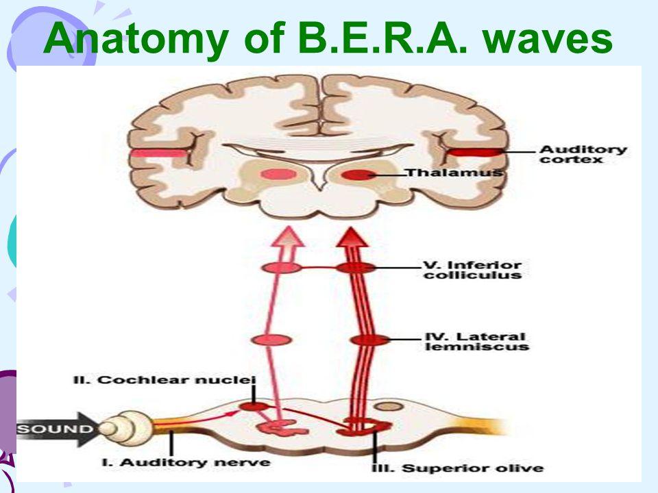 Anatomy of B.E.R.A. waves