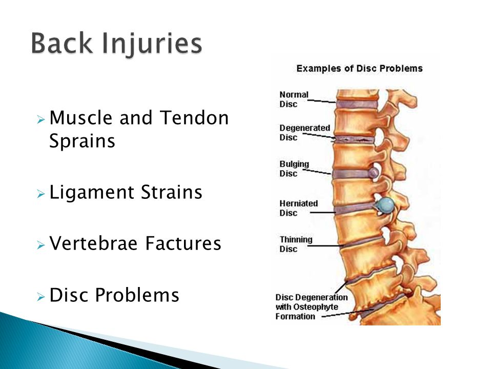  Muscle and Tendon Sprains  Ligament Strains  Vertebrae Factures  Disc Problems