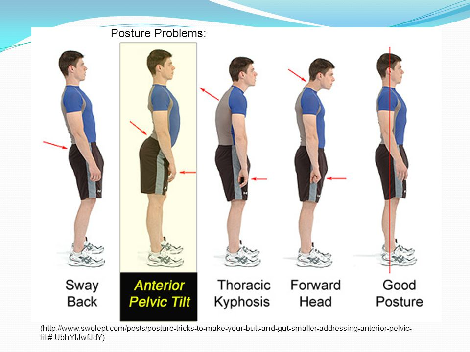 (http://www.swolept.com/posts/posture-tricks-to-make-your-butt-and-gut-smaller-addressing-anterior-pelvic- tilt#.UbhYlJwfJdY) Posture Problems: