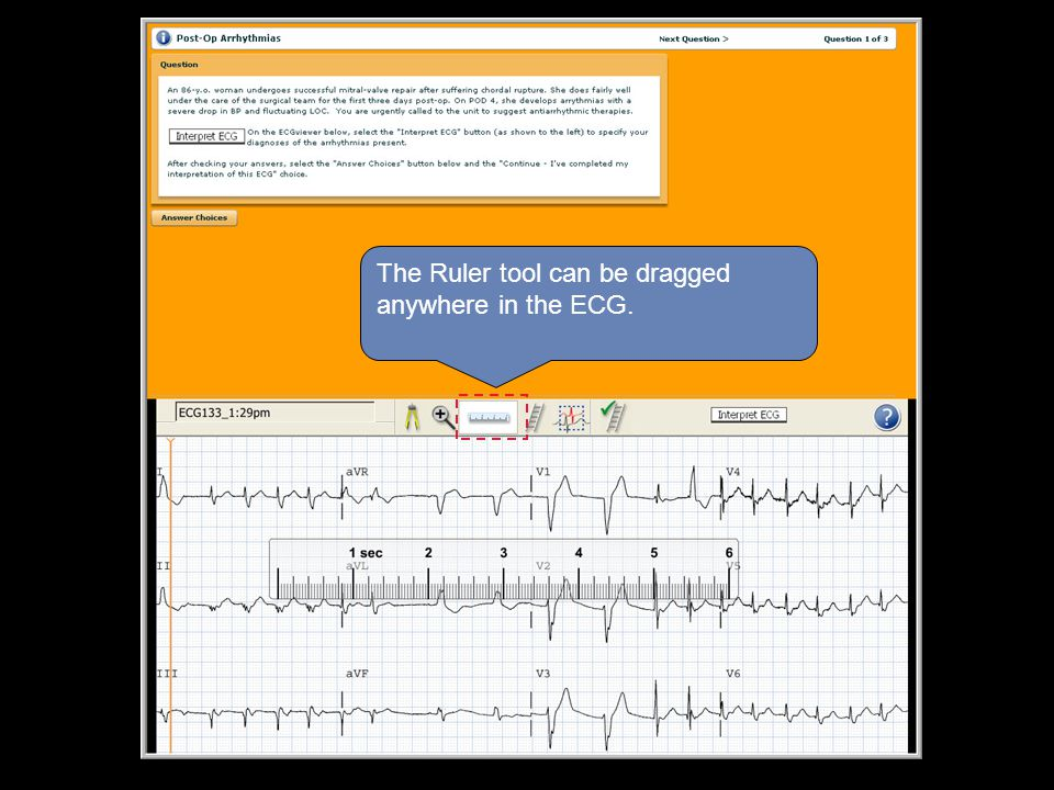 The Ruler tool can be dragged anywhere in the ECG.