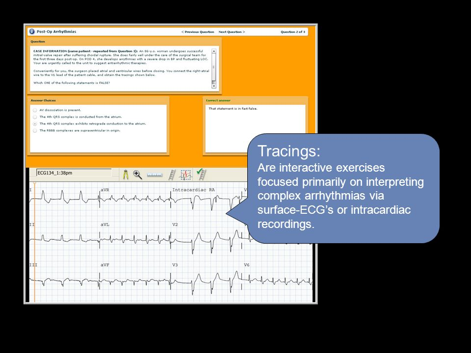 Tracings: Are interactive exercises focused primarily on interpreting complex arrhythmias via surface-ECG's or intracardiac recordings.
