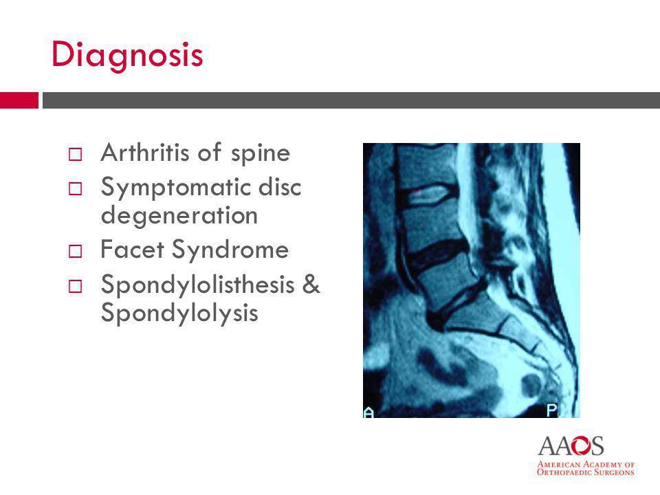 23 Diagnosis  Arthritis of spine  Symptomatic disc degeneration  Facet Syndrome  Spondylolisthesis & Spondylolysis