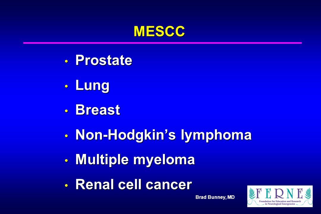 Brad Bunney, MD MESCC Prostate Prostate Lung Lung Breast Breast Non-Hodgkin's lymphoma Non-Hodgkin's lymphoma Multiple myeloma Multiple myeloma Renal