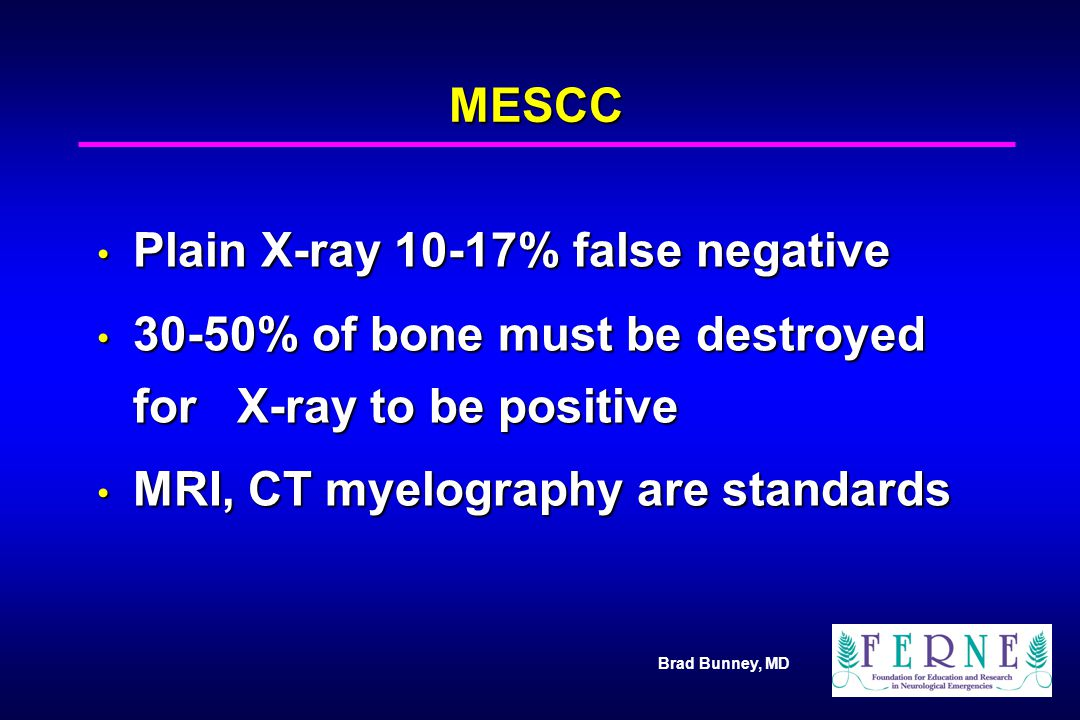Brad Bunney, MD MESCC Plain X-ray 10-17% false negative Plain X-ray 10-17% false negative 30-50% of bone must be destroyed for X-ray to be positive 30