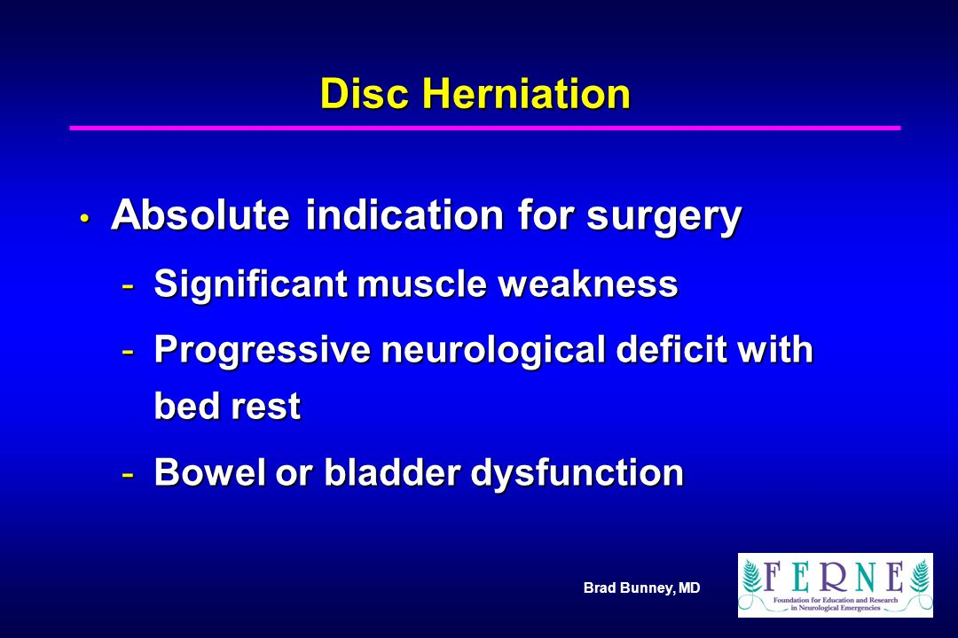 Brad Bunney, MD Disc Herniation Absolute indication for surgery Absolute indication for surgery -Significant muscle weakness -Progressive neurological