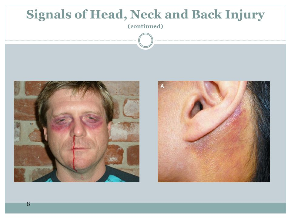 9 Care for Head, Neck and Back Injuries Head, neck and back injuries can become life threatening.