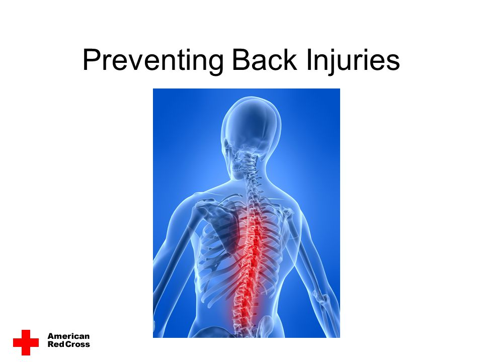 Treating a Back Attack Signals –Pain in the lower or upper back –Pain down the side or back of the leg and/or into the foot –Tingling or numbness in part of the leg