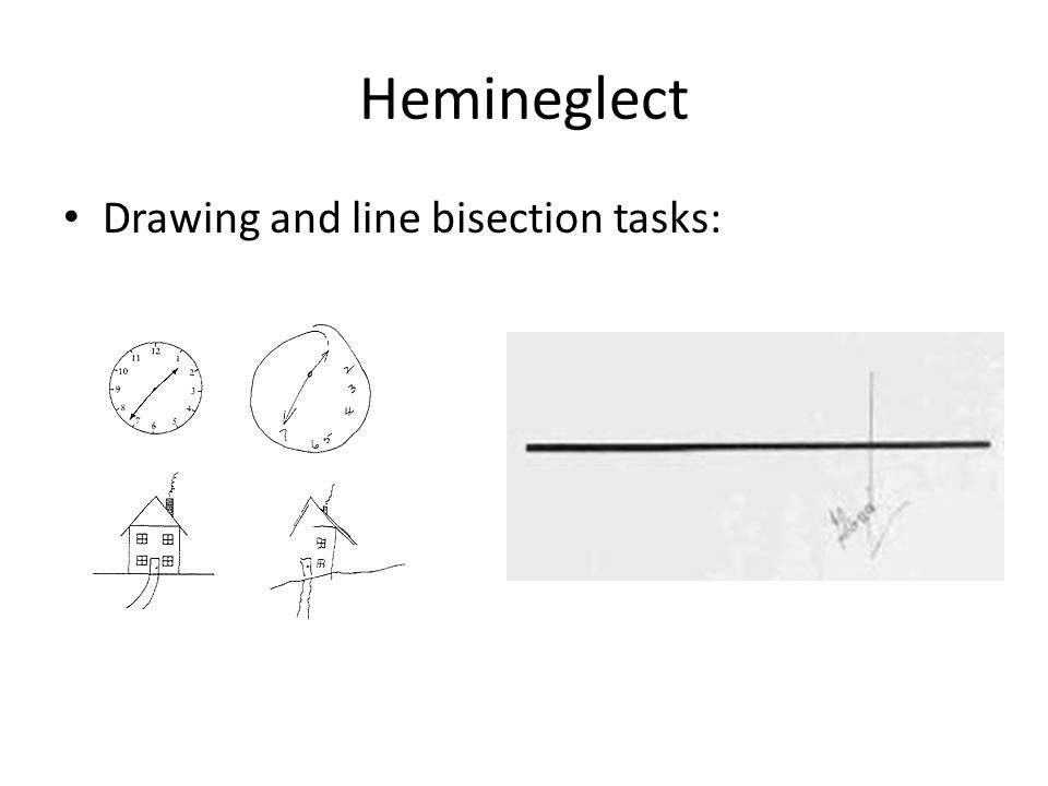 Hemineglect Drawing and line bisection tasks: