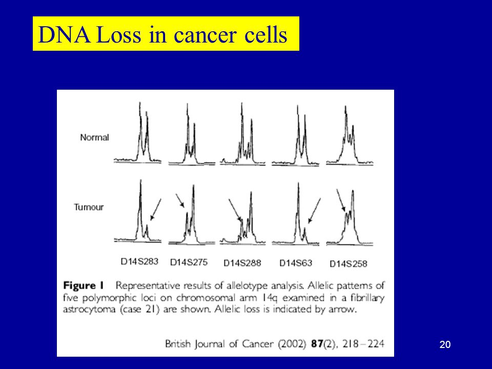 20 DNA Loss in cancer cells