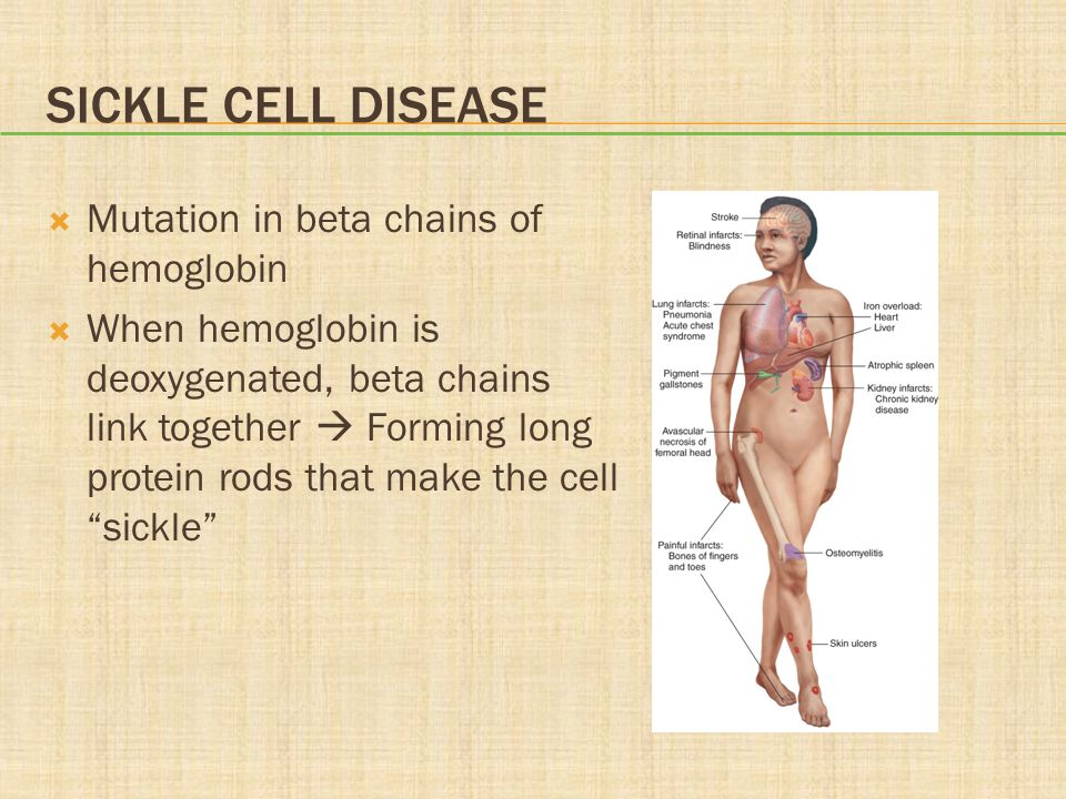 SICKLE CELL DISEASE  Mutation in beta chains of hemoglobin  When hemoglobin is deoxygenated, beta chains link together  Forming long protein rods that make the cell sickle