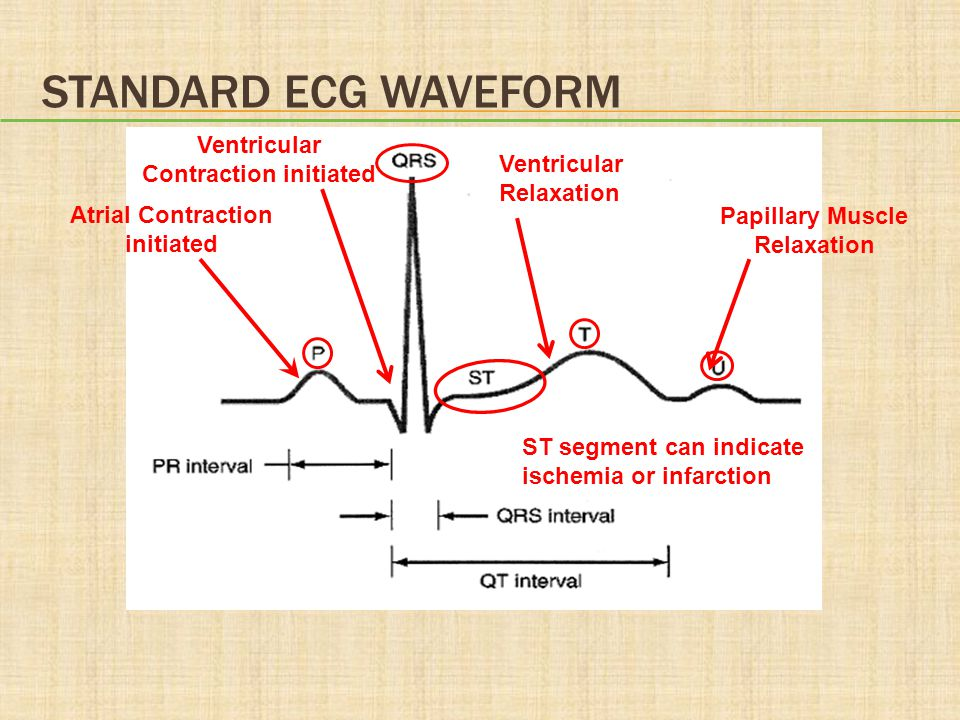 STANDARD ECG WAVEFORM Atrial Contraction initiated Ventricular Contraction initiated Ventricular Relaxation Papillary Muscle Relaxation ST segment can