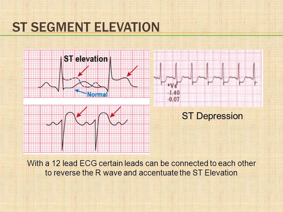 ST SEGMENT ELEVATION ST Depression With a 12 lead ECG certain leads can be connected to each other to reverse the R wave and accentuate the ST Elevati