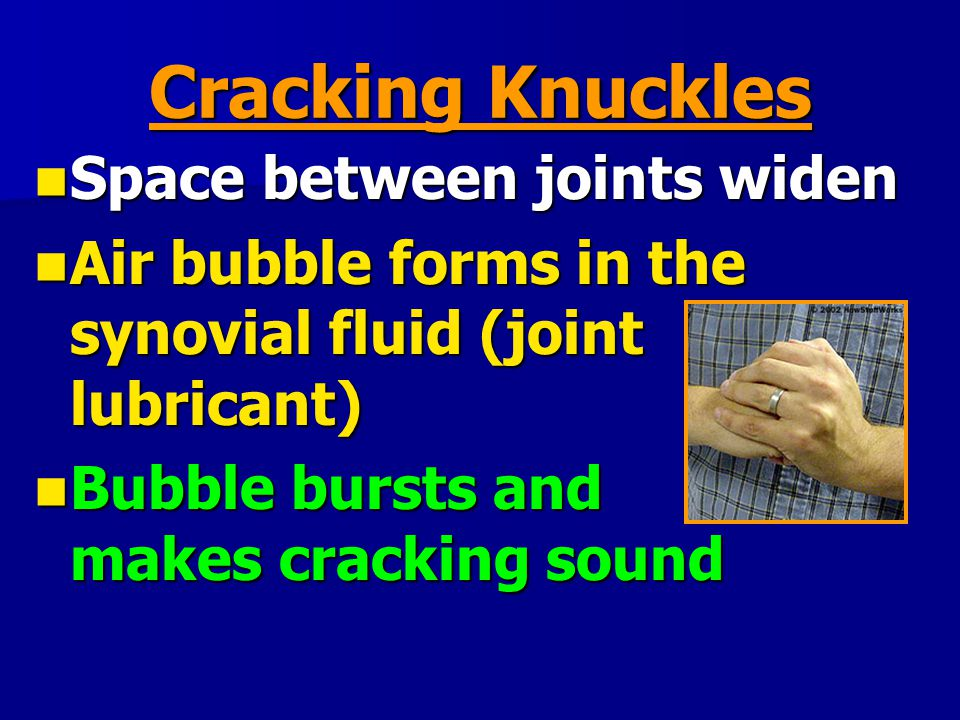 Cracking Knuckles Space between joints widen Space between joints widen Air bubble forms in the synovial fluid (joint lubricant) Air bubble forms in t