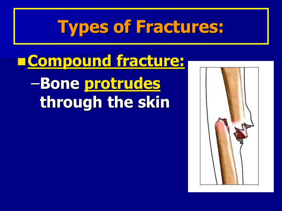 Compound fracture: Compound fracture: –Bone protrudes through the skin Types of Fractures: