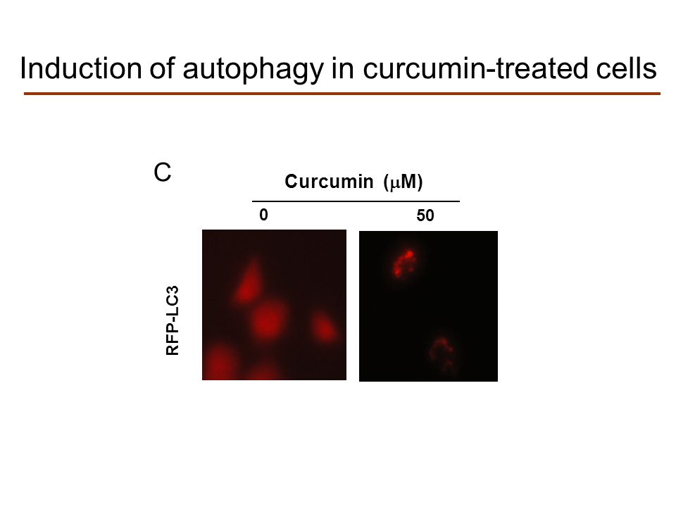 RFP-LC3 Curcumin (  M) 0 50 C Induction of autophagy in curcumin-treated cells