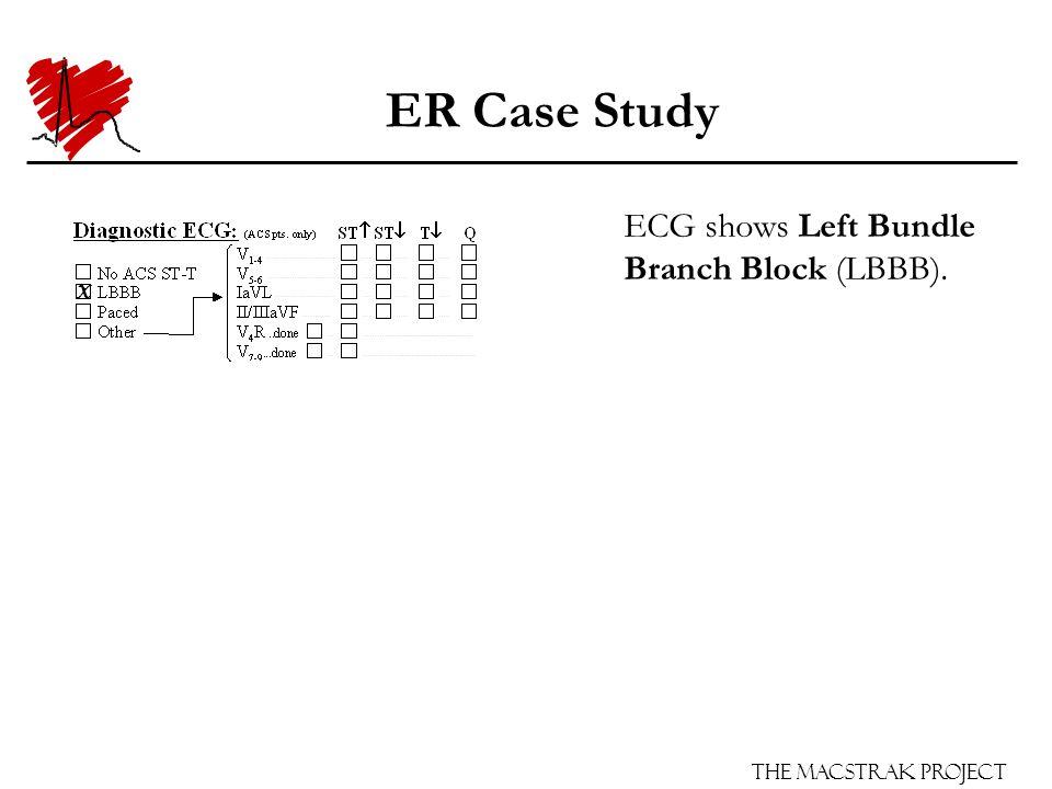 The Macstrak Project ER Case Study ECG shows Left Bundle Branch Block (LBBB). X