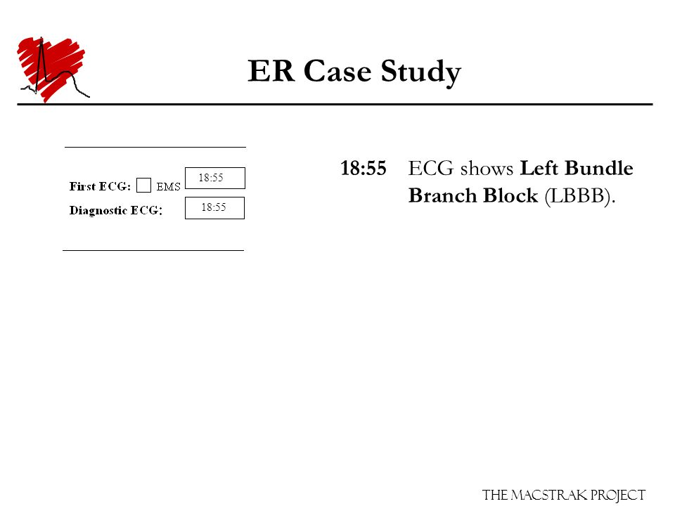 The Macstrak Project ER Case Study 18:55ECG shows Left Bundle Branch Block (LBBB). 18:55