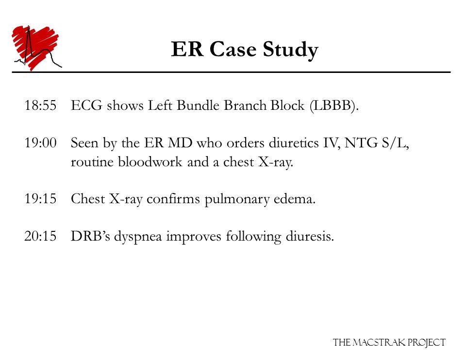 The Macstrak Project ER Case Study 18:55ECG shows Left Bundle Branch Block (LBBB). 18:55