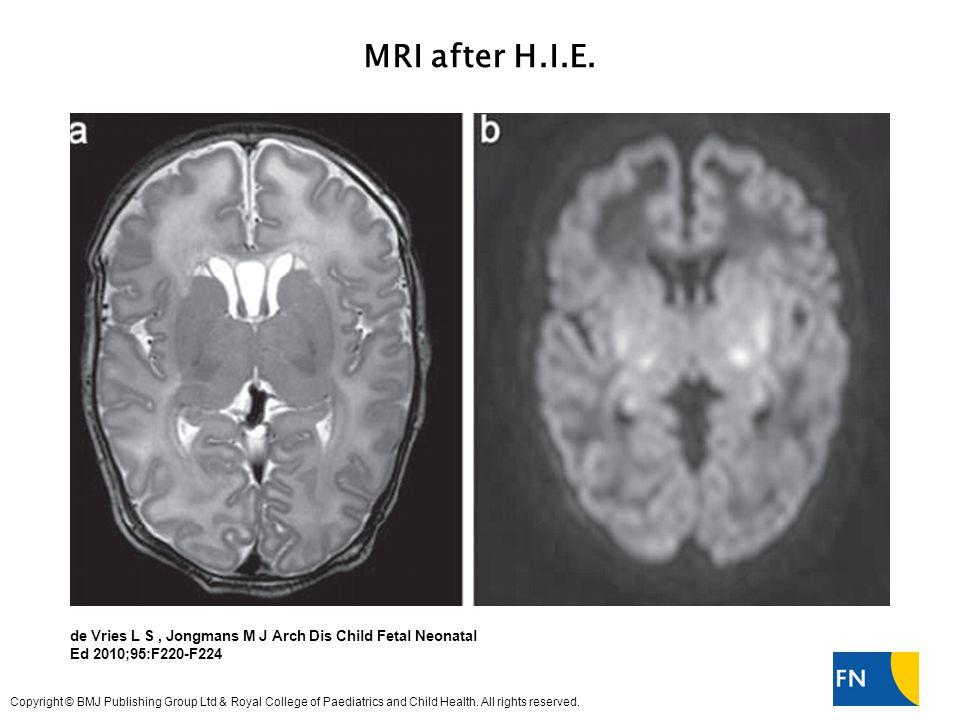 MRI after H.I.E.