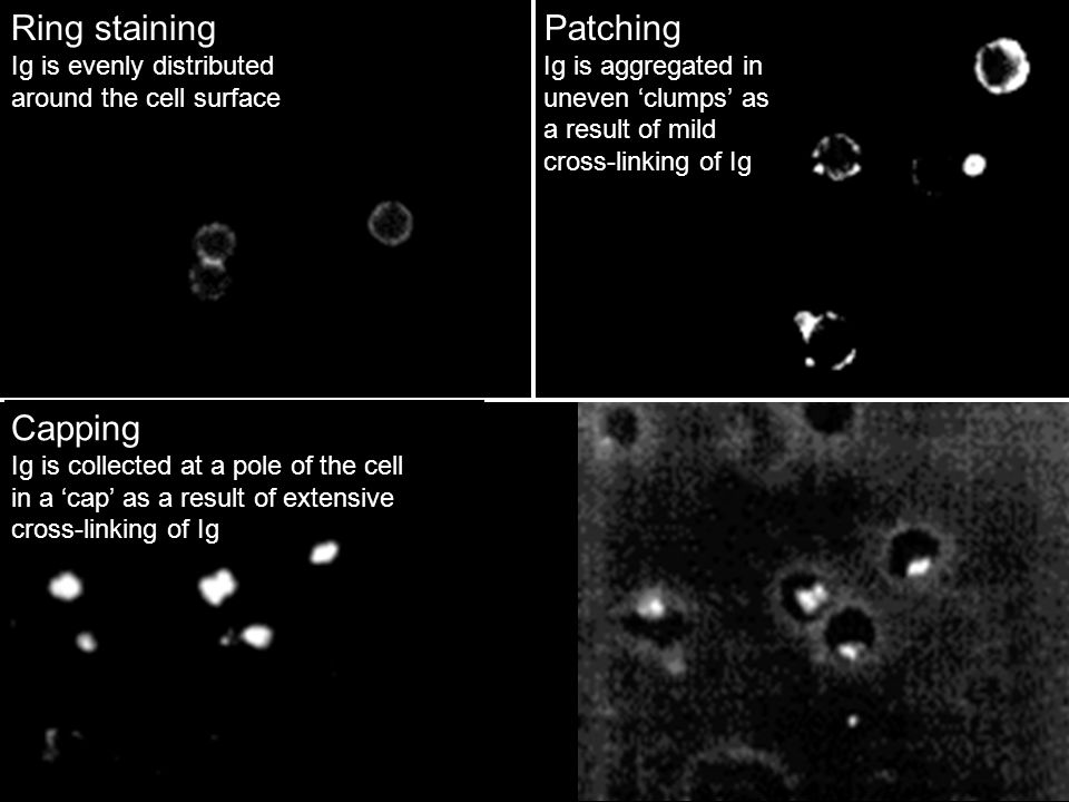 Ring staining Ig is evenly distributed around the cell surface Patching Ig is aggregated in uneven 'clumps' as a result of mild cross-linking of Ig Ca