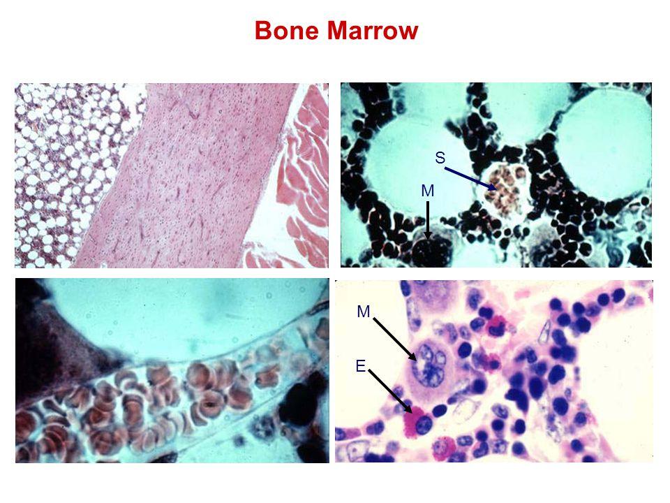 Bone Marrow E M M S