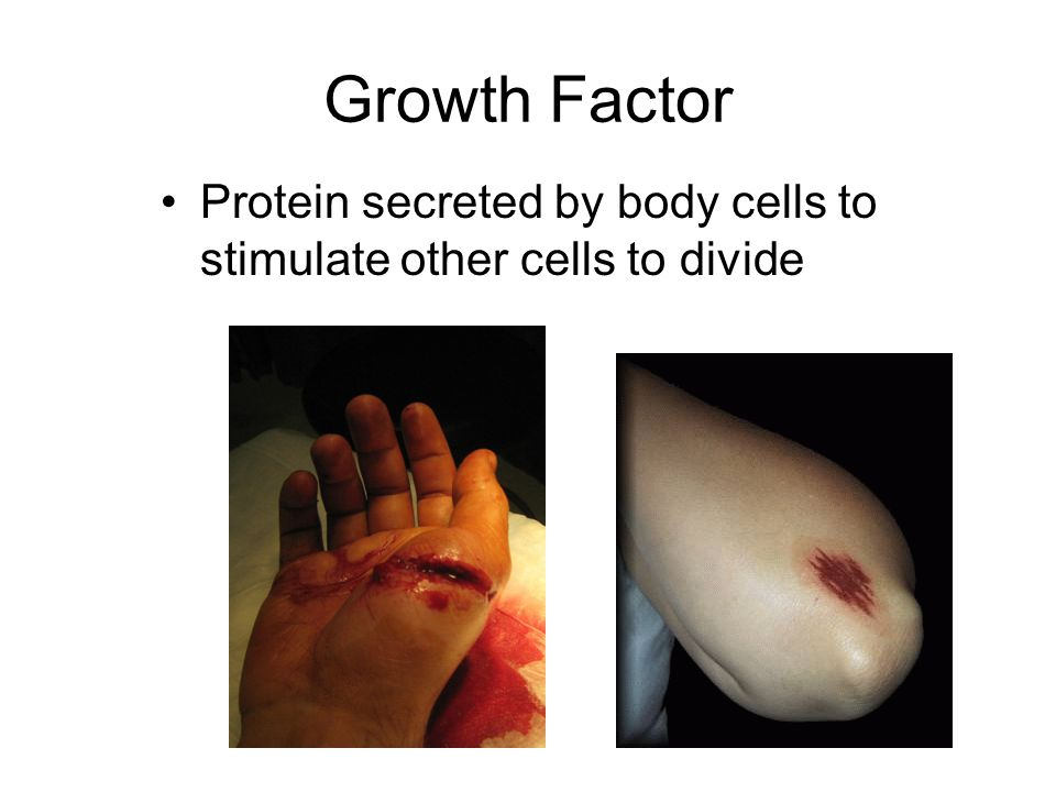 Growth Factor Protein secreted by body cells to stimulate other cells to divide