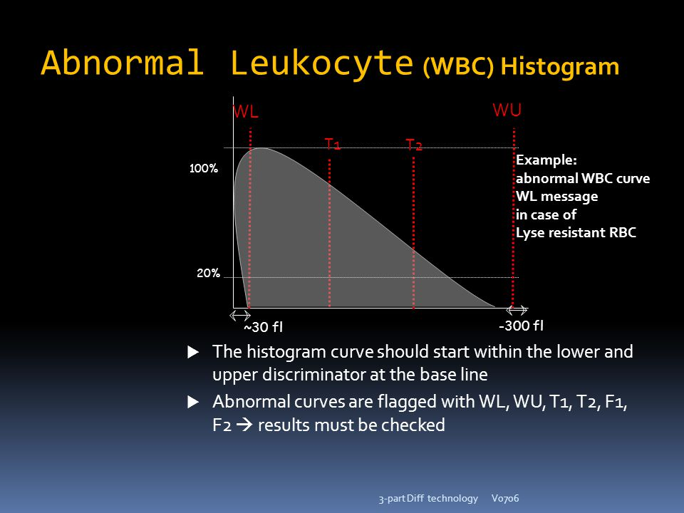 V07063-part Diff technology ~30 fl -300 fl WL WU 100% 20%  The histogram curve should start within the lower and upper discriminator at the base line