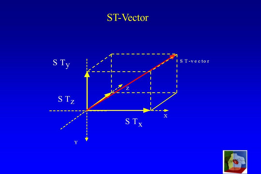 SVE-99 ST-Vector