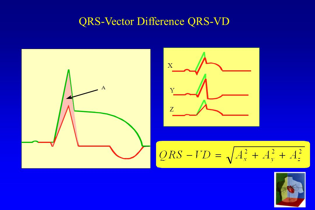 SVE-99 QRS-Vector Difference QRS-VD A X Y Z