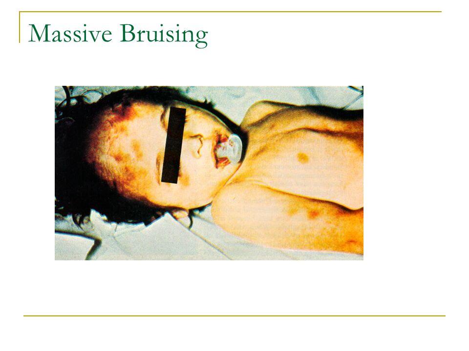 Massive Bruising