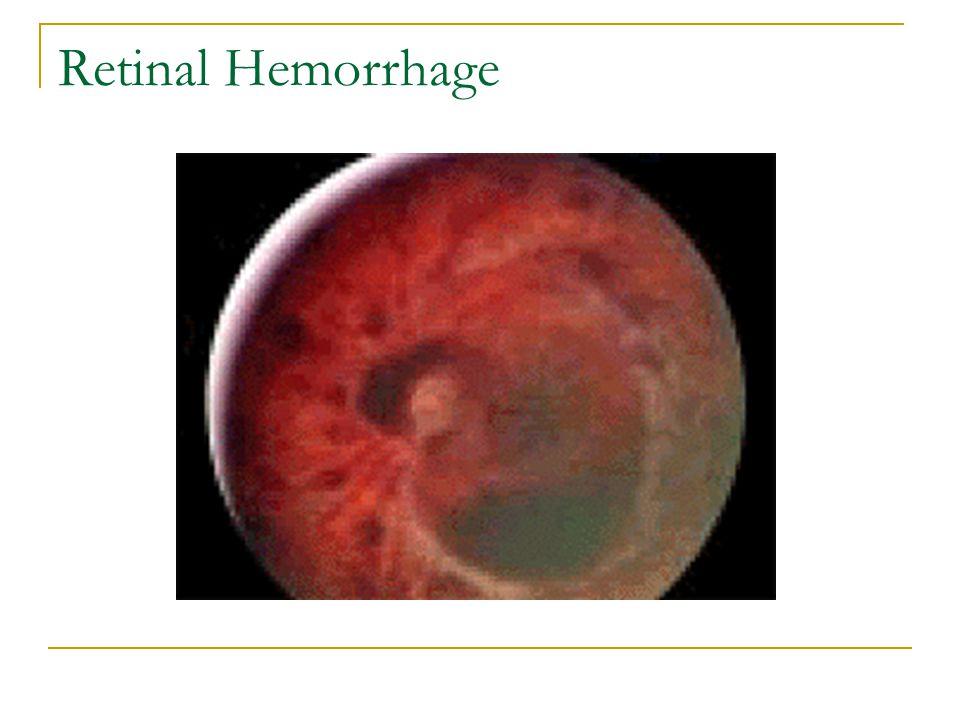 Retinal Hemorrhage
