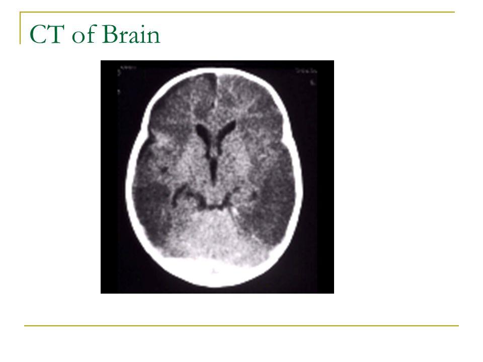 CT of Brain