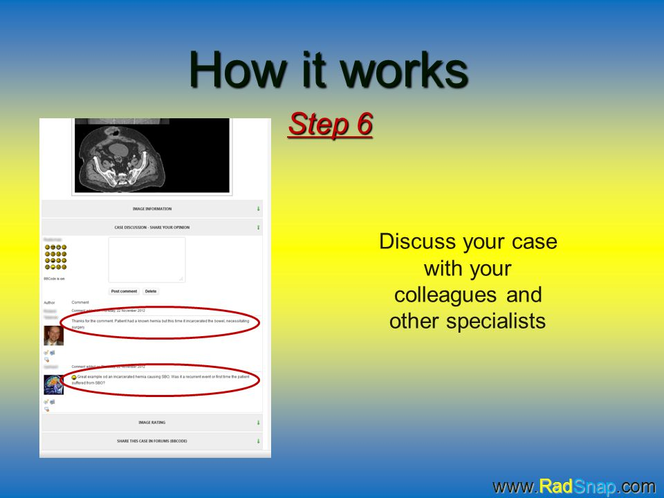 How it works Step 6 Discuss your case with your colleagues and other specialists www.RadSnap.com