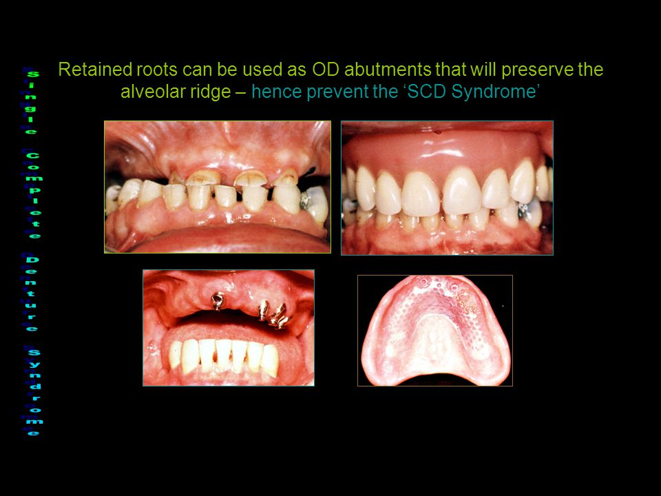 Retained roots can be used as OD abutments that will preserve the alveolar ridge – hence prevent the 'SCD Syndrome'